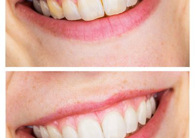 Prosmiledentalclinic-Before-and-After-pic-4