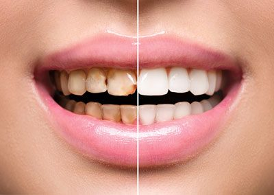 Prosmiledentalclinic-Before-and-After-pic-5