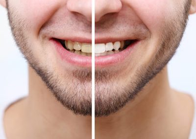 Prosmiledentalclinic-Before-and-After-pic-6