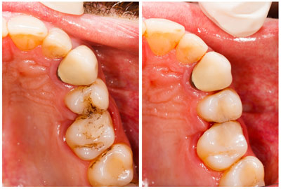 Prosmiledentalclinic-Before-and-After-pic